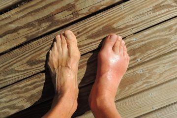 Symptômes de l'arthrite du pied