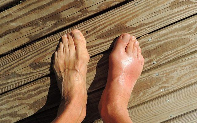 arthrite du pied