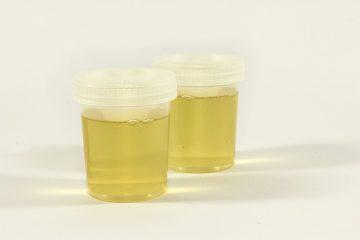 Quelle est l'importance de l'analyse d'urine ?