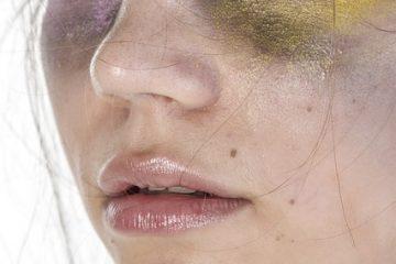 Comment aider à guérir une lèvre fendue