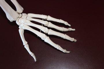 Les aliments à l'origine des poussées d'arthrite