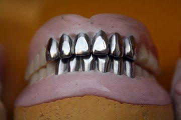 Comment puis-je blanchir mes prothèses dentaires ?
