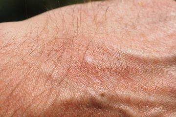 Comment faire pour augmenter les histamines naturelles Histamines naturelles